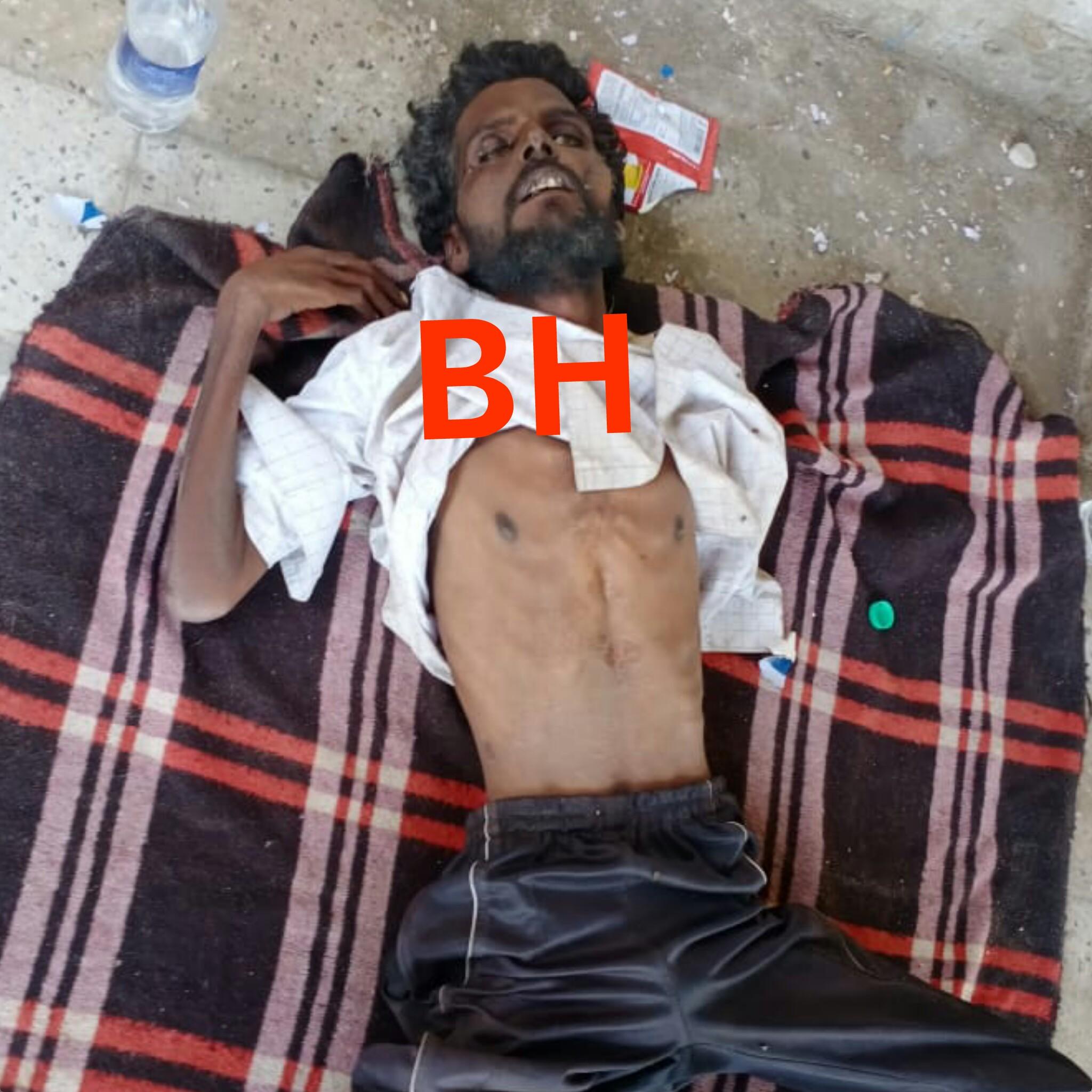 करंट से झुलसे युवक ने तोड़ा दम, अज्ञात की मिली लाश